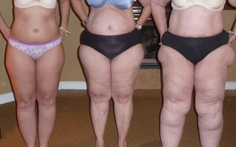 Integrative Treatment of Lipedema
